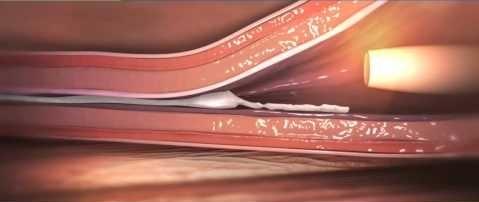 血管内塞栓術