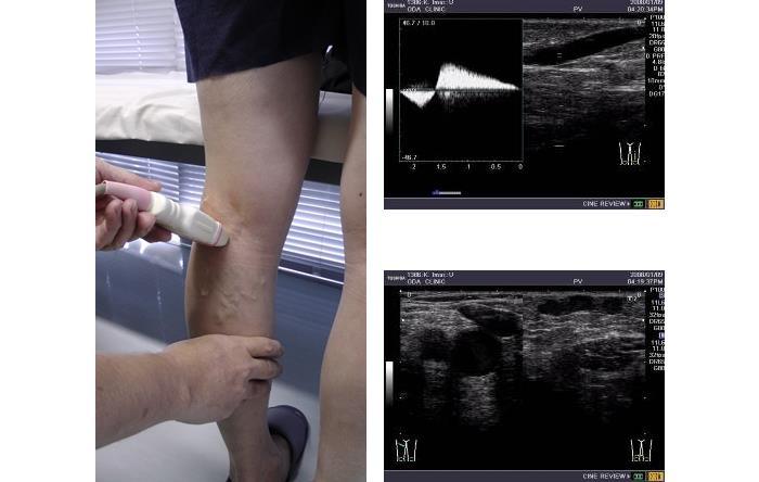 下肢静脈瘤のエコー検査