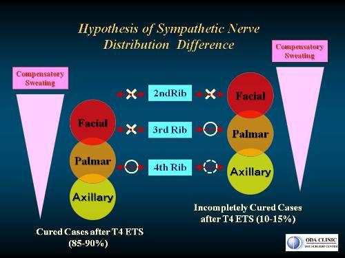 低位交感神経遮断手術(T4-ETS)後に少し手汗がでる場合の神経分布の個人差