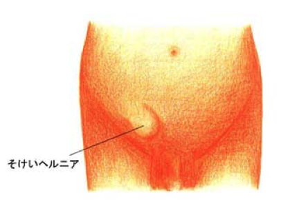 鼠径ヘルニア(脱腸)は福岡市のおだクリニック日帰り手術外科へ