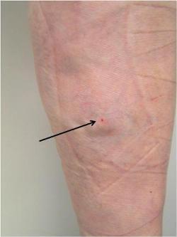 下肢静脈瘤手術の例