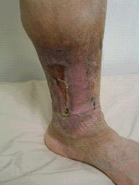 C5:静脈潰瘍の痕を伴うもの