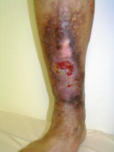 静脈瘤性皮膚潰瘍